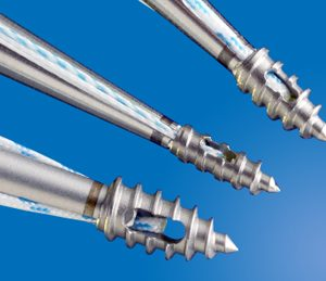 MiTi & MiTi XL Titanium Screw-In Suture Anchors